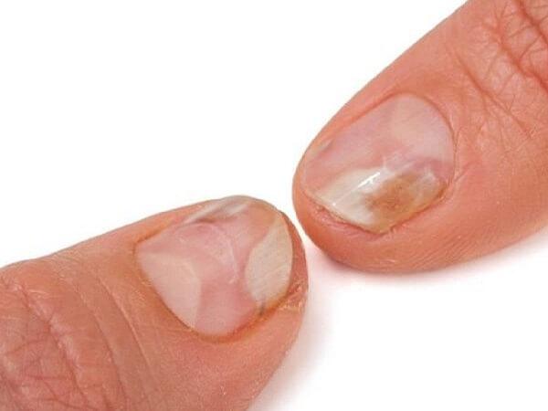 Tham khảo cách đoán tình hình sức khỏe qua móng tay