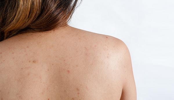 Chăm sóc da lưng bị mụn cần biết những gì?