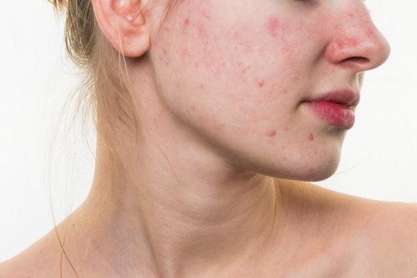 Các bước chăm sóc da sau điều tri sẹo rỗ