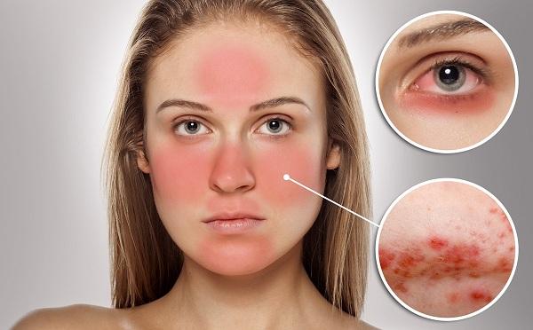 Làn da nhạy cảm cần lưu ý gì khi trang điểm