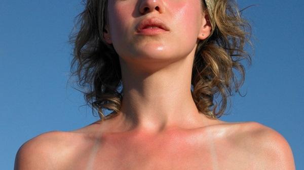 Đâu là dấu hiệu sản phẩm không hợp với da bạn nên biết?