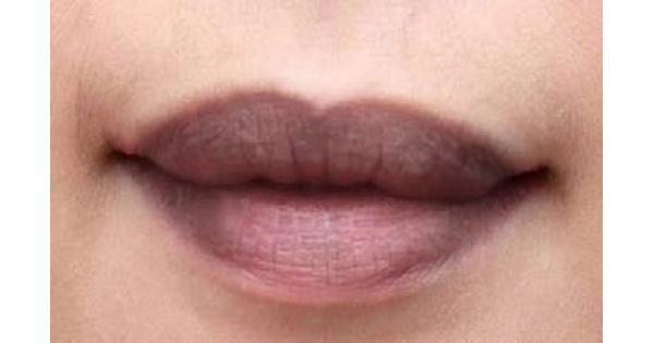 6 lý do khiến môi bạn ngày càng thâm mà bạn lại không hề hay biết!